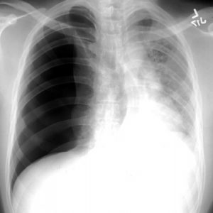 Tension Pneumothorax X-Ray
